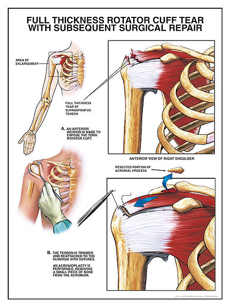 Michael Gonzalez-Wallace explains shoulder anatomy and how you can strengthen this important joint-Image from wikipedia